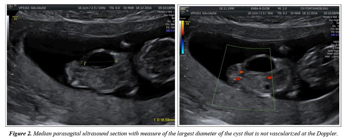 gynecology-obstetrics-hysteroscopic-vascularized