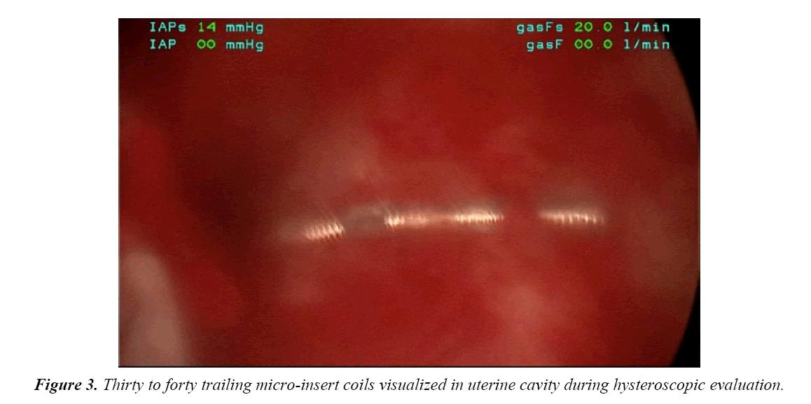 gynecology-obstetrics-micro-insert-coilsl