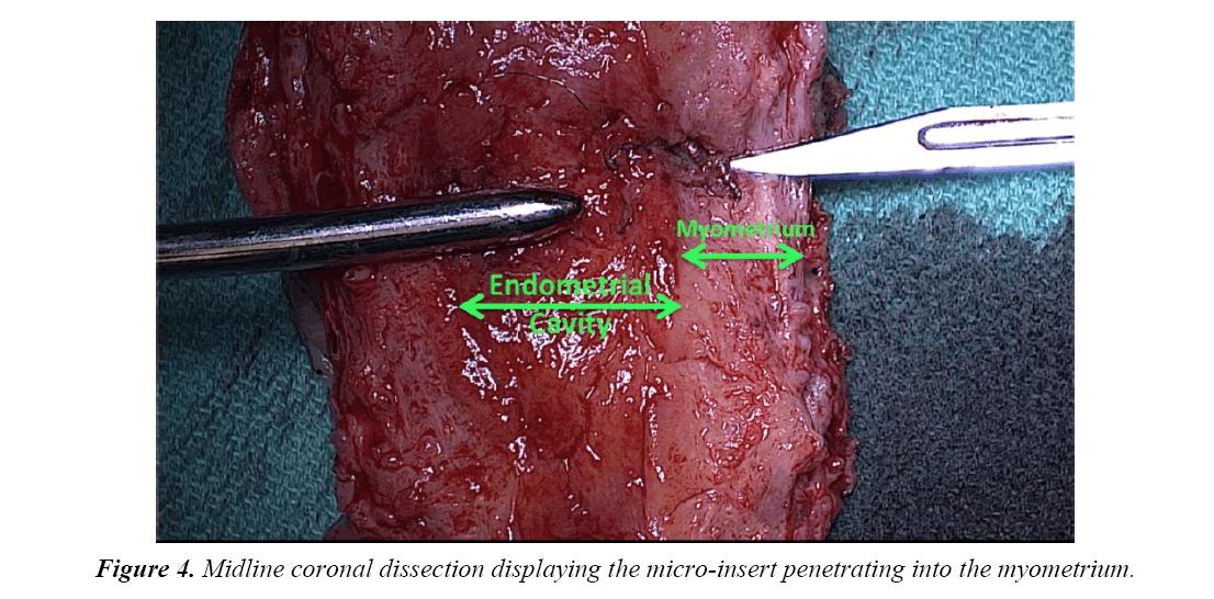 gynecology-obstetrics-micro-insert-penetrating