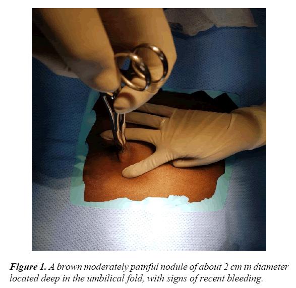 gynecology-obstetrics-umbilical-fold