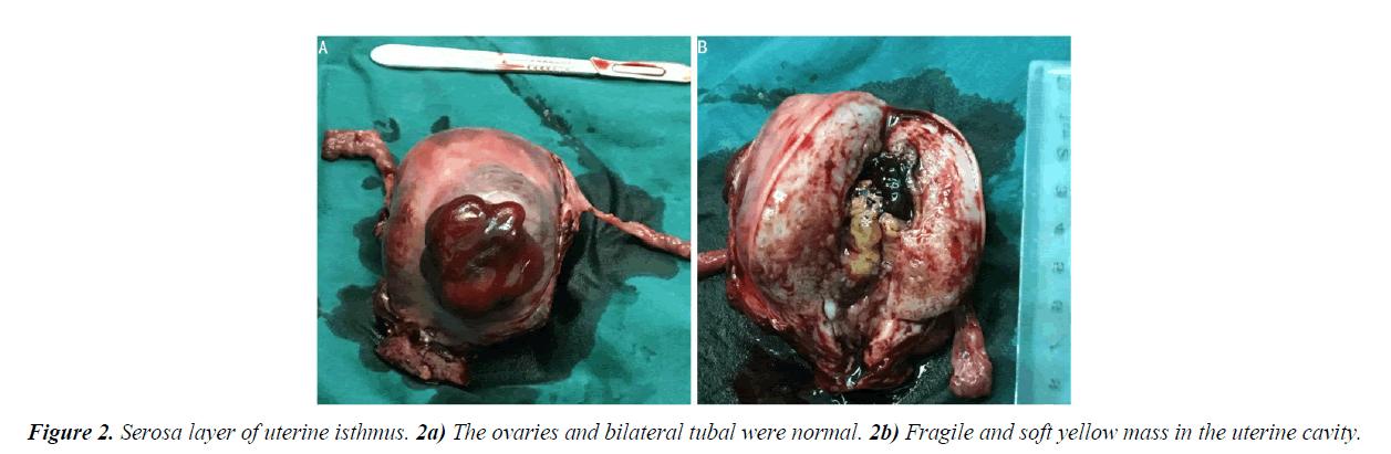 gynecology-obstetrics-uterine-isthmus