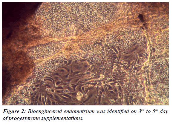 gynecology-reproductive-endocrinology-Bioengineered-endometrium