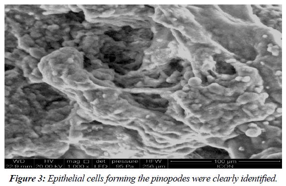 gynecology-reproductive-endocrinology-Epithelial-cells