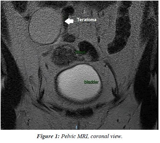 gynecology-reproductive-endocrinology-Pelvic-MRI