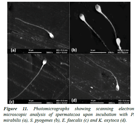 gynecology-reproductive-endocrinology-scanning-electron