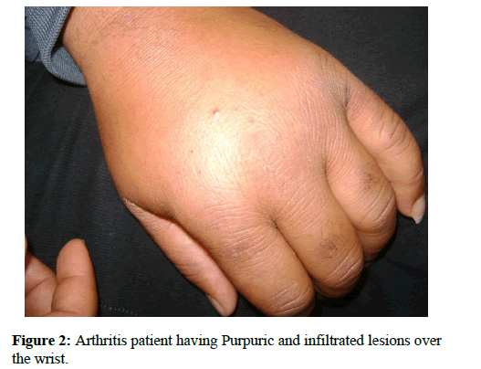 immunology-case-reports-patient