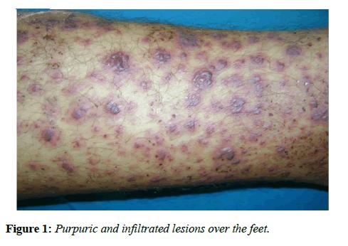 immunology-case-reports-purpuric