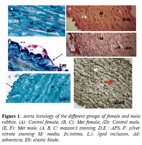 insights-nutrition-metabolism-Aorta-histology