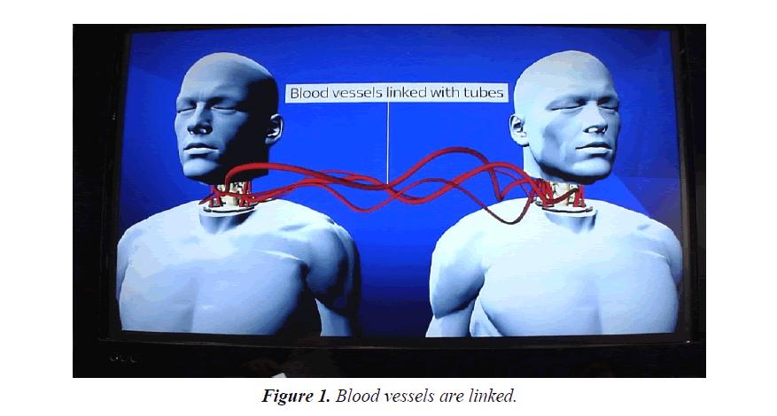integrative-neuroscience-research-blood-vessels