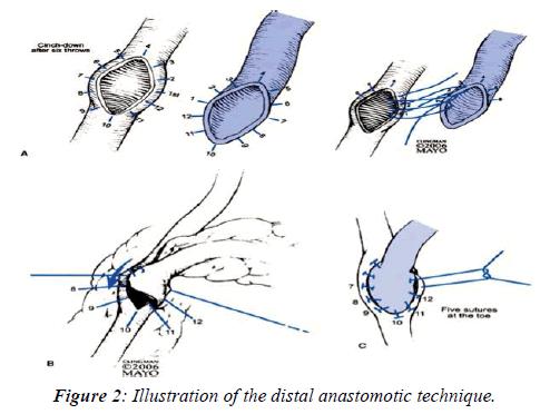 invasive-non-invasive-cardiology-anastomotic