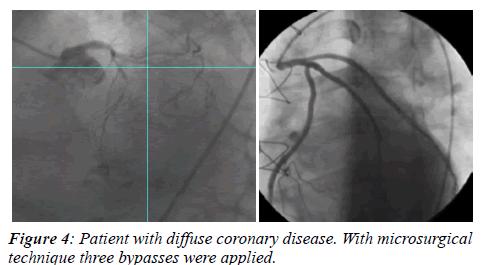 invasive-non-invasive-cardiology-coronary