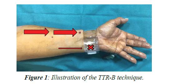 invasive-non-invasive-cardiology-illustration