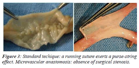 invasive-non-invasive-cardiology-stenosis