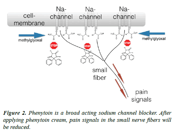 journal-diabetology-sodium-channel