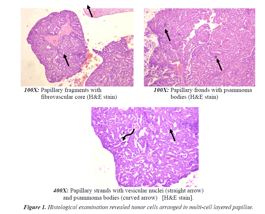 medical-oncology-therapeutics-Histological-examination