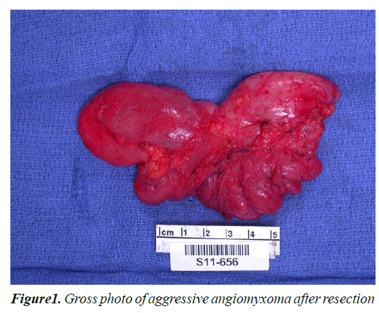 medical-oncology-therapeutics-aggressive-angiomyxoma