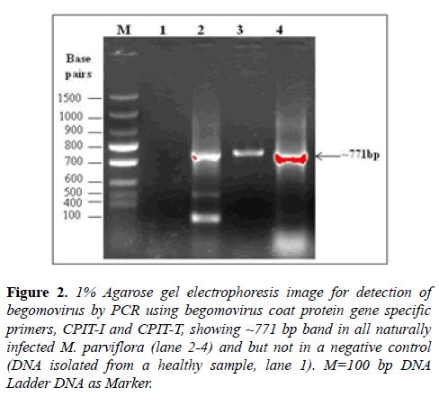 microbiology-Agarose-gel