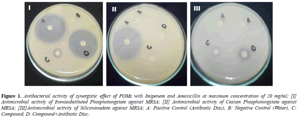 microbiology-Antibacterial-activity