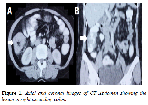 molecular-oncology-Axial-coronal