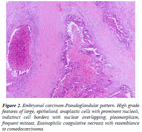 molecular-oncology-Embryonal-carcinom