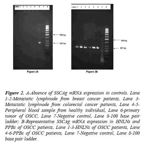 molecular-oncology-Metastatic-lymphnode