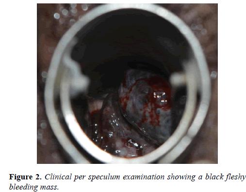 molecular-oncology-bleeding-mass