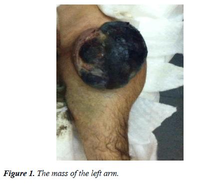 molecular-oncology-left-arm