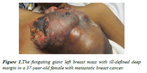 molecular-oncology-left-breast
