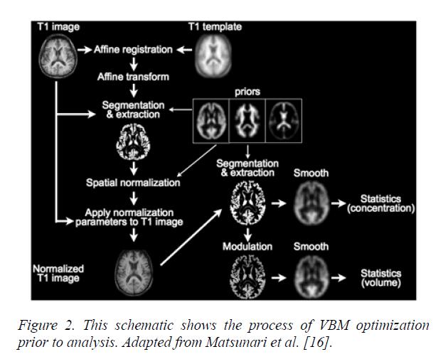 neuroinformatics-neuroimaging-VBM-optimization