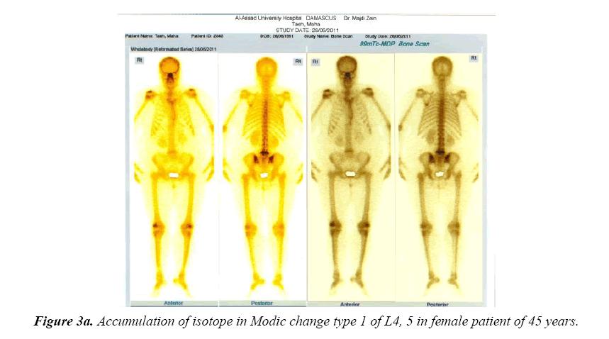 neuroinformatics-neuroimaging-accumulation-isotope