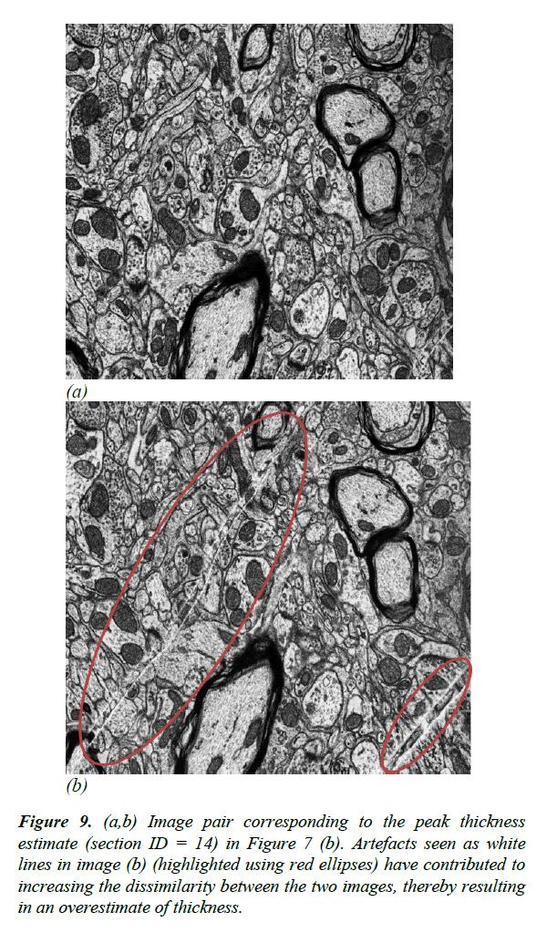 neuroinformatics-neuroimaging-overestimate-thickness