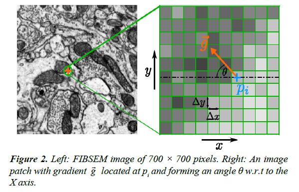 neuroinformatics-neuroimaging-patch-gradient