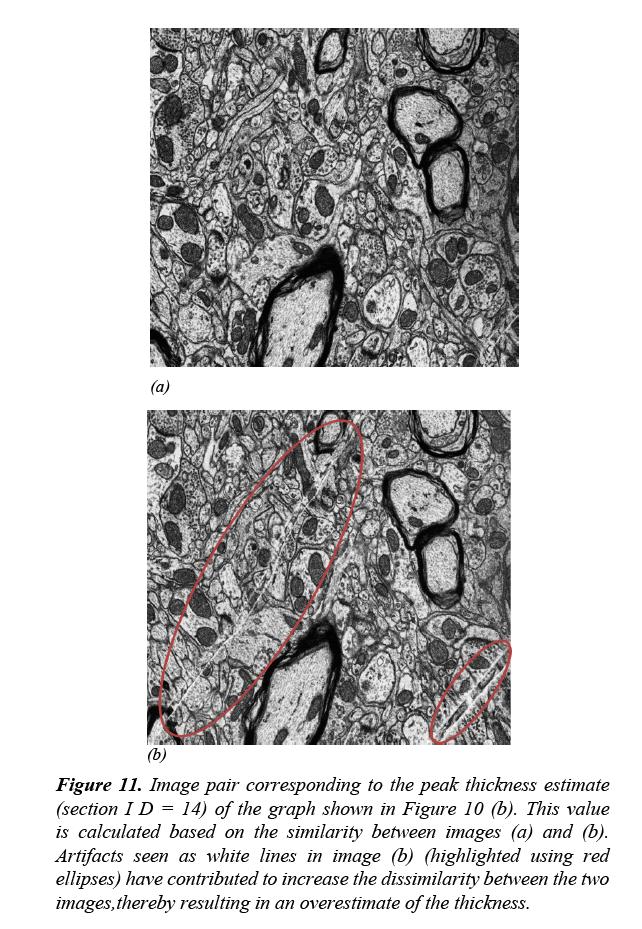 neuroinformatics-neuroimaging-peak-thickness