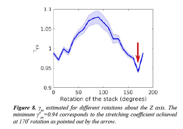 neuroinformatics-neuroimaging-stretching-coefficient