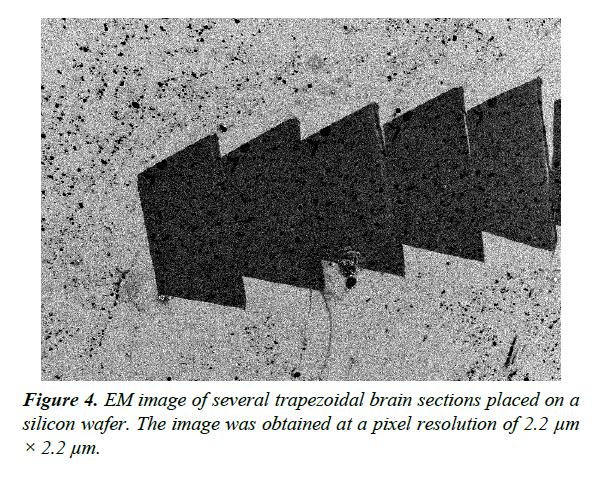 neuroinformatics-neuroimaging-trapezoidal-brain