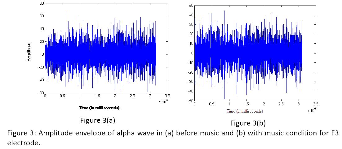 neurology-neurorehabilitation-research-Amplitude-envelope-alpha-wave