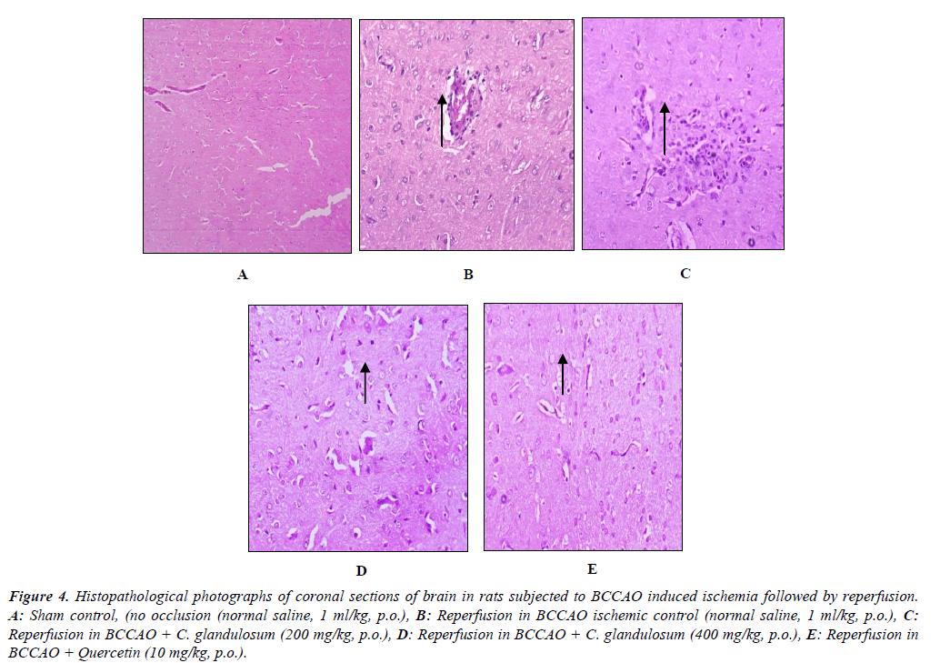 eurology-neurorehabilitation-research-Histopathological-photographs-coronal-sections