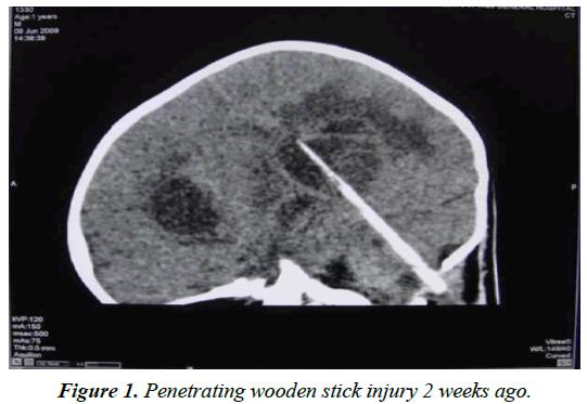 neurology-neurorehabilitation-research-Penetrating-wooden-stick