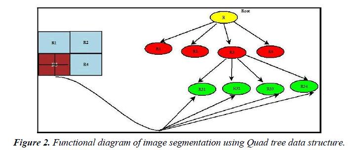 neurology-neurorehabilitation-research-Quad-tree-data-structure