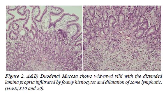 nutrition-human-health-Duodenal-Mucosa