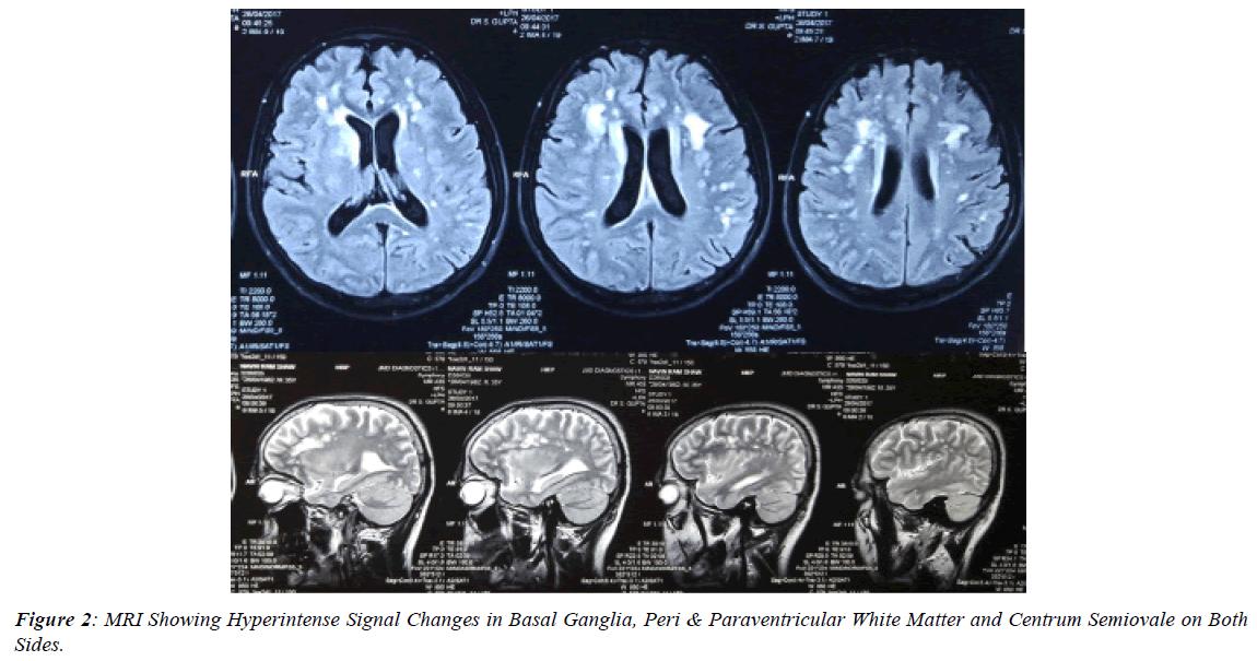 ophthalmic-and-eye-research-Basal-Ganglia