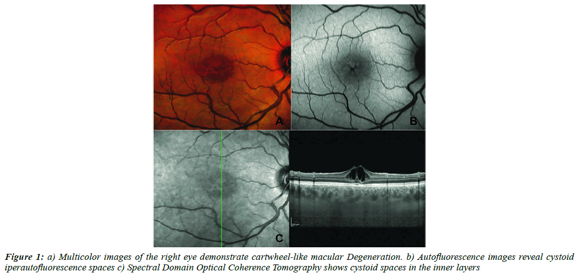 ophthalmic-and-eye-research-Multicolor-images