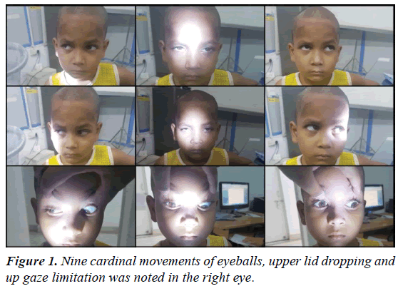 ophthalmic-and-eye-research-cardinal-movements