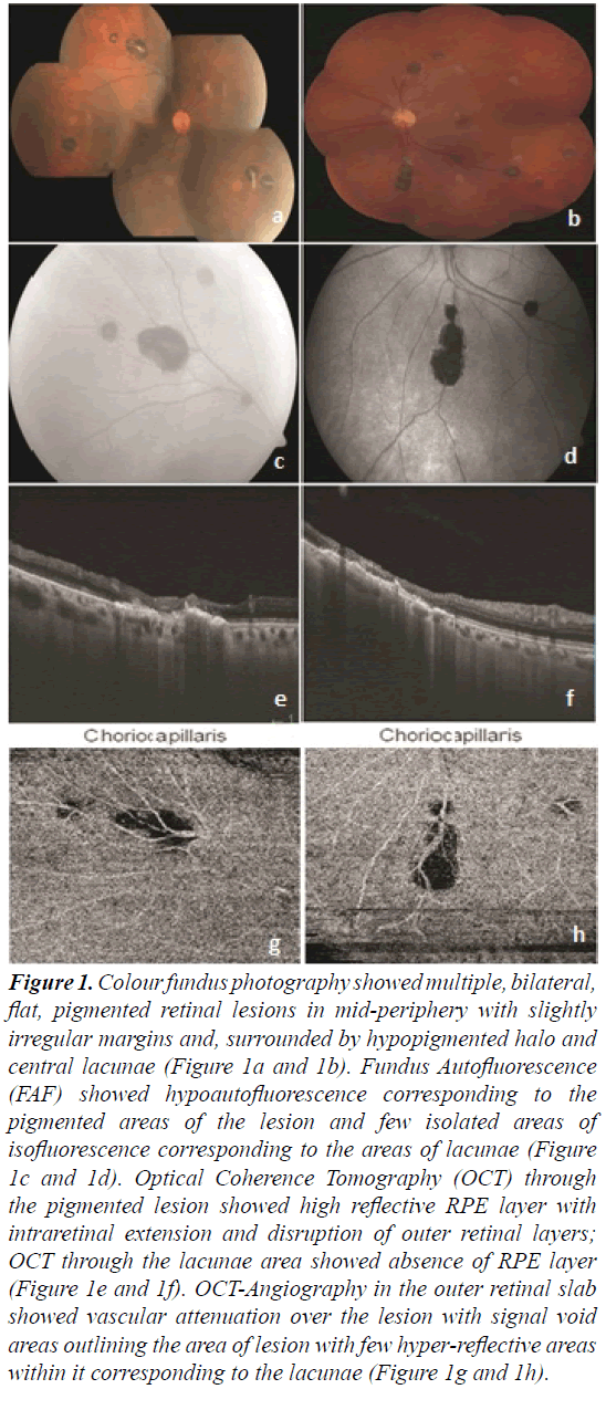 ophthalmic-eye-research-Colour-fundus