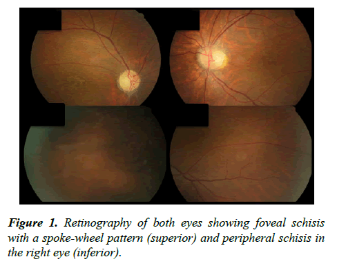 ophthalmic-eye-research-Retinography