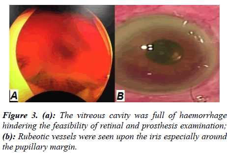 ophthalmic-eye-research-Rubeotic