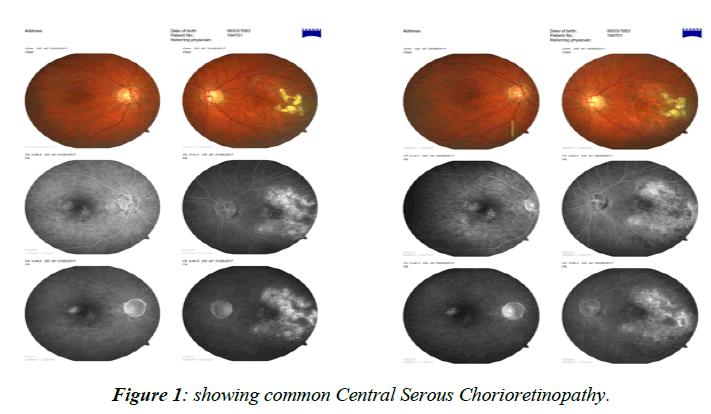 ophthalmic-eye-research-Serous-Chorioretinopathy