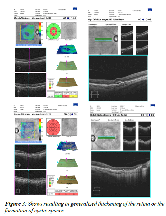 ophthalmic-eye-research-cystic-spaces