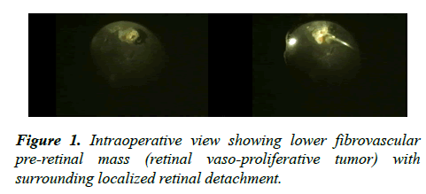 ophthalmic-eye-research-fibrovascular