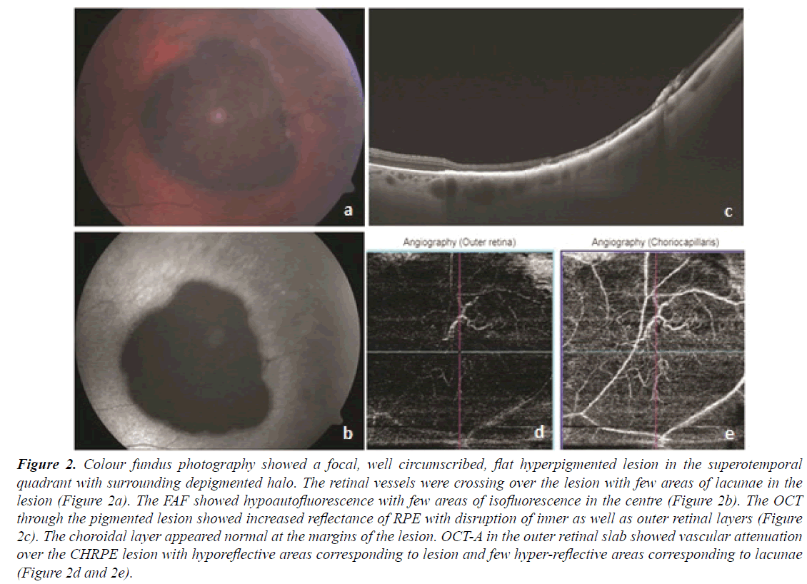 ophthalmic-eye-research-fundus-photography